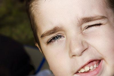 علت و درمان تیک عصبی در کودکان